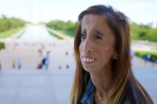 "Lizzie Velasquez, subject of documentary ""A Brave heart"""